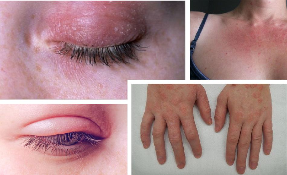 Alergia a esmaltes