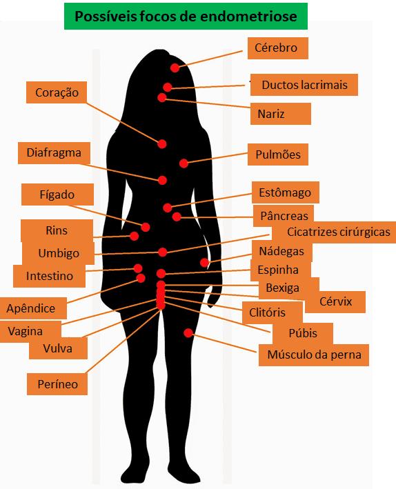 Endometriose - possíveis focos da doença.